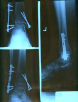 X-ray of broken ankle